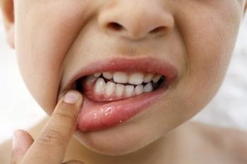 Какими симптомами сопровождается гингивит у детей