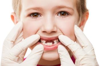 Причины развития гингивита у детей