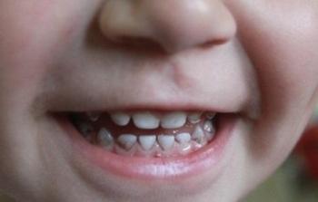 Так выглядит появляющийся черный налет на зубах у ребенка