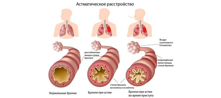 Что происходит во время бронхиальной астме у детей