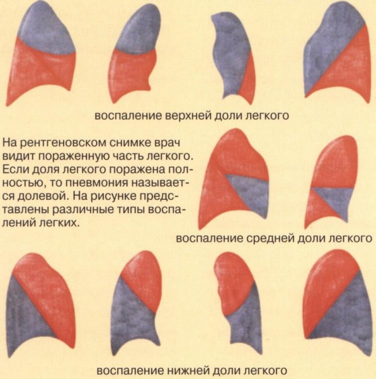 Долевые пневмонии у детей - классификация