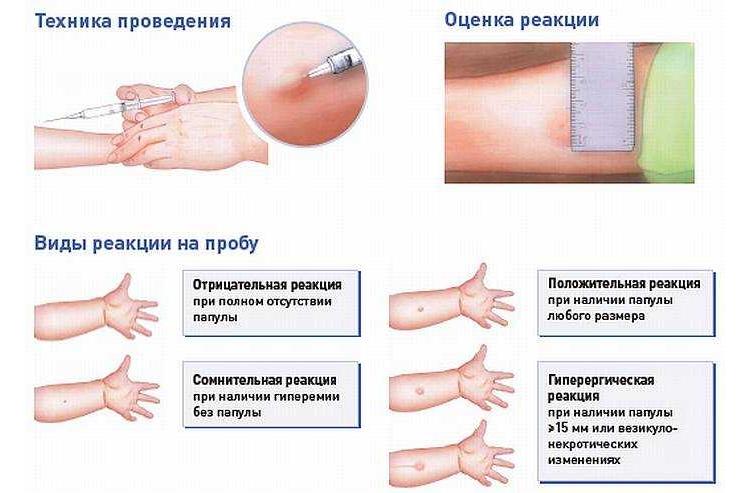 Как проводится тест Манту у детей на туберкулез