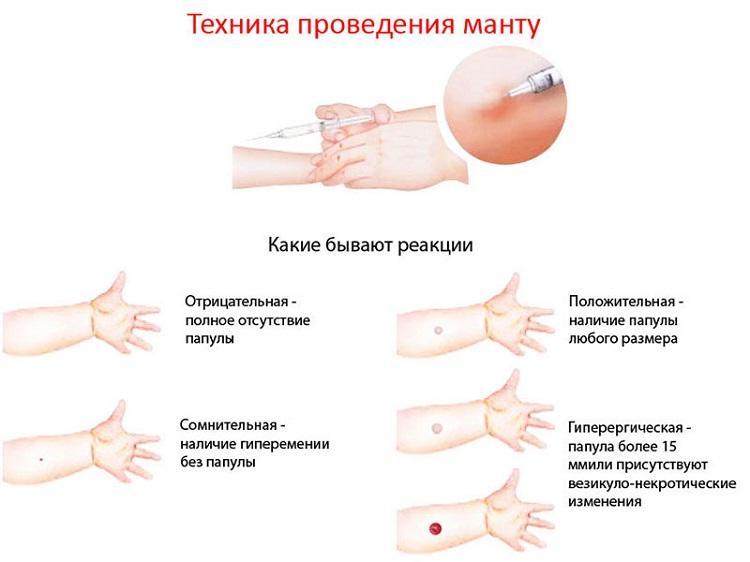 Информационная медицинская картинка