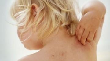 Аллергический дерматит у детей, его проявления и лечение