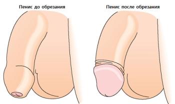 Хирургическое лечение фимоза у ребенка
