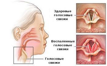 Симптоматика и стадии ларинготрахеита у детей