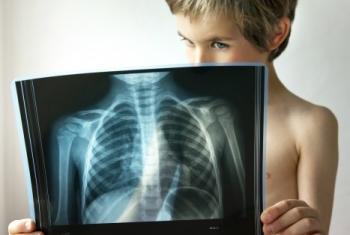 Показания к применению Азитромицина 250 для детей