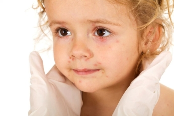 Передозировка и побочные эффекты сиропа Эриспирус для детей