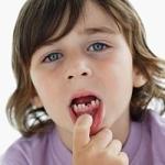 У мальчика болит зуб