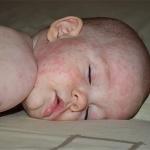 Болезнь розеола у детей: симптомы, признаки, лечение