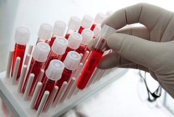 О чем говорит понижение уровня лейкоцитов в крови у ребенка?