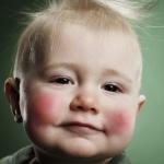 У малыша красные щеки