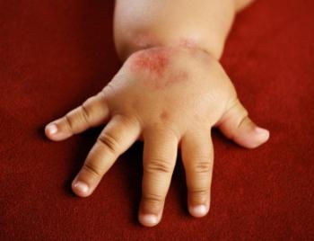 Красные пятна на руке