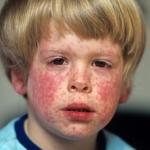 Как и чем лечить краснуху у ребенка?