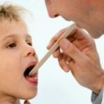 Осматриваем горло ребенку