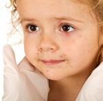 Сыпь на лице у девочки