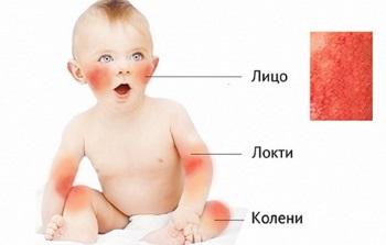 Симптомы диатеза у новорожденных