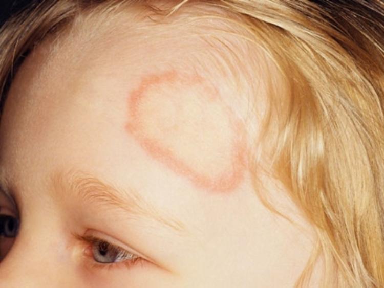 Стригущий лишай у детей: фото очага на коже и голове
