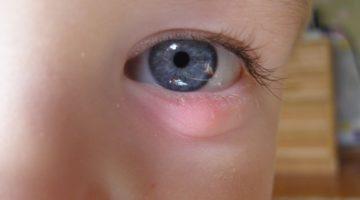 Халязион у ребенка: причины и симптомы, лечение и профилактика