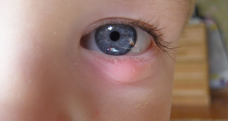 Халязион у ребенка на верхнем или нижнем веке: фото, причины ...