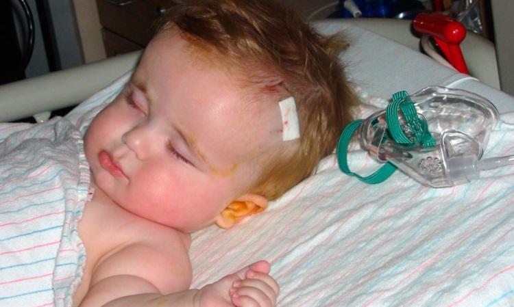 Симптомы гидроцефалии головного мозга у детей