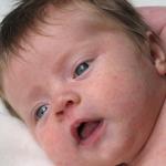 Как проявляется краснуха у детей до года?