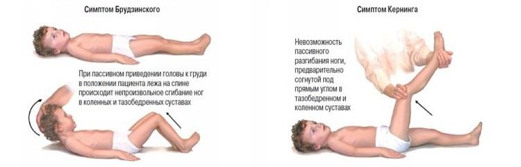 Симптомы Кернинга и Брудзинского