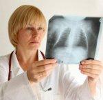 Как своевременно распознать туберкулез у детей?