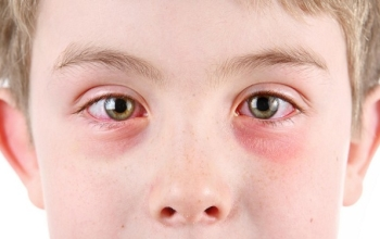 Глазные капли для детей Альбуцид: инструкция по применению, основные показания