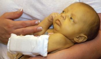 Урсофальк для новорожденных: инструкция по применению, основные показания