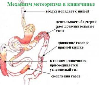 Показания к применению Плантекс у новорожденных и грудничков
