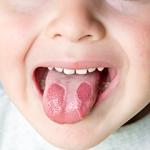 В чем заключается лечение кандидозного стоматита у детей?