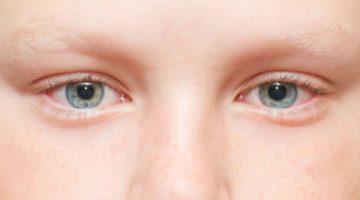 Причины, по которым у ребенка могут болеть глаза