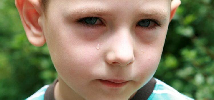 Красные круги под глазами у ребенка - почему это происходит