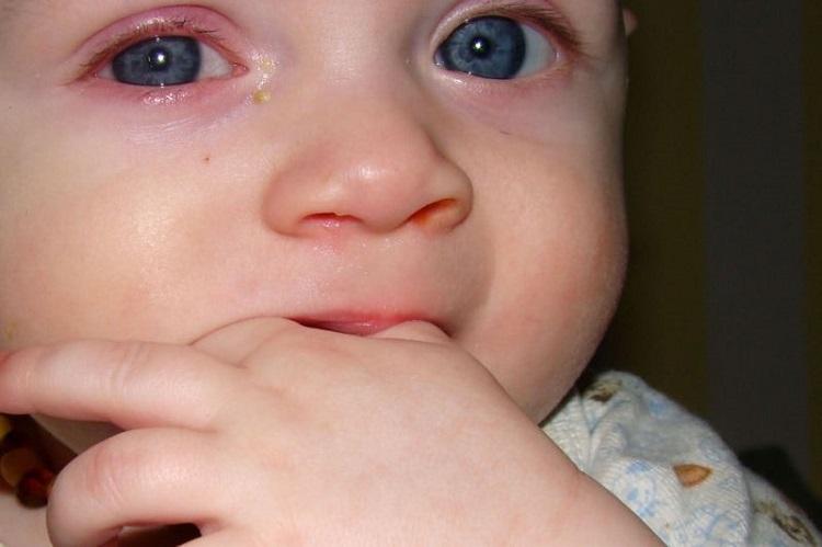 Красные веки у ребенка - причины и фото