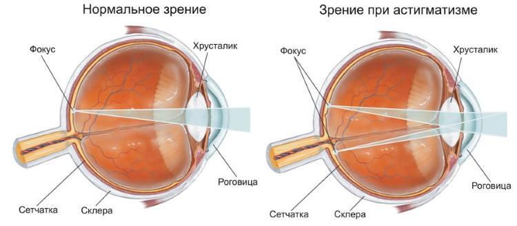 Диагностика и лечение гиперметропического астигматизма у детей