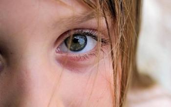 У ребенка опухло и покраснело верхнее веко: чего делать нельзя?