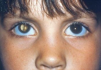 Врожденная и другие виды катарактыу детей: определение заболевания