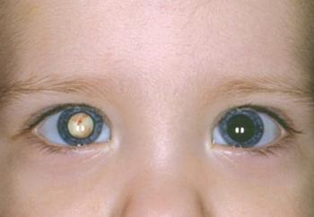 Врожденная и другие виды катарактыу детей: клинические проявления