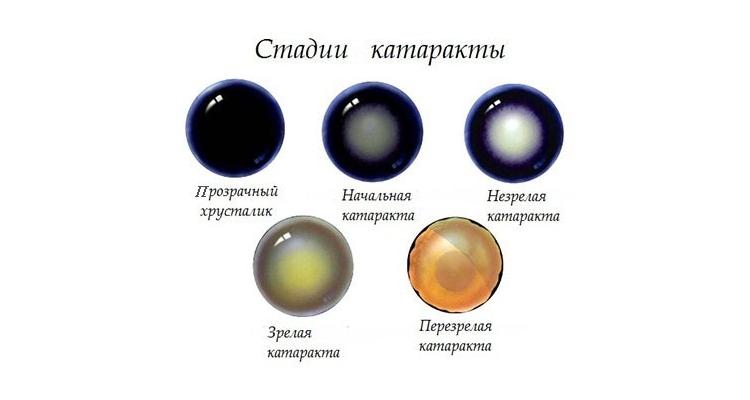 Врожденная и другие виды и стадии катарактыу детей