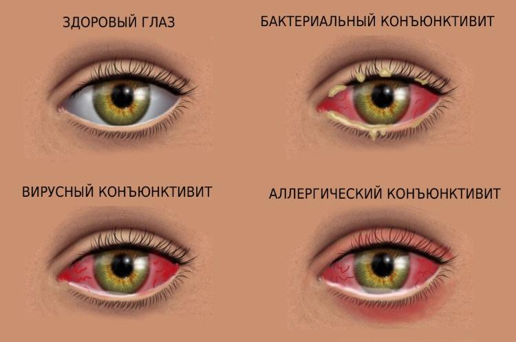 Информационные картинки