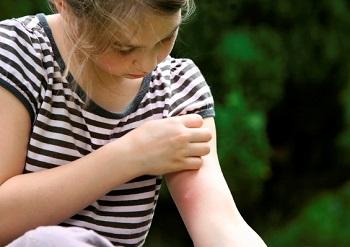 Чем мазать укусы насекомых у детей - полезные рекомендации