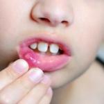 Симптомы гингивита у детей, быстрое и эффективное лечение заболевания