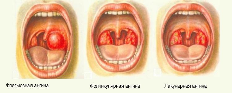 Лечения миндалин у детей в домашних условиях