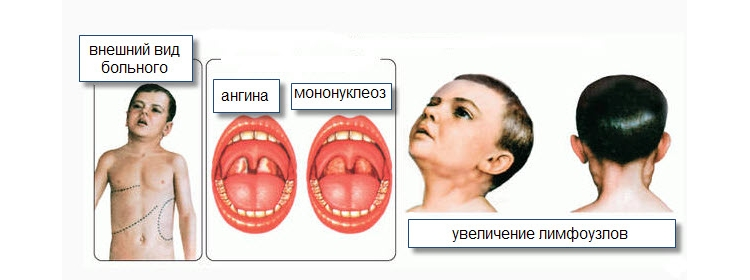 Основная симптоматика инфекционного мононуклеоза у детей