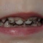 Почему бывает черный налет на зубах у ребенка