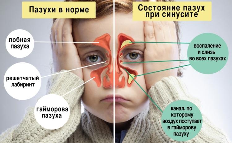 Состояние носовых пазух при синусите у ребенка