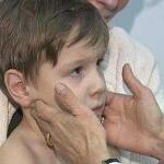 Мононуклеоз у детей - что за болезнь и как лечится