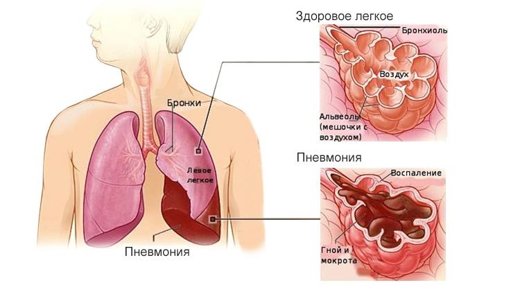 Пневмония у детей - что это такое и как часто встречается