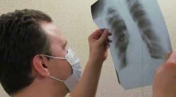 Признаки, диагностика и схема лечения туберкулеза у детей